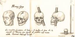 Phineas Gage studio cranio (dettaglio)